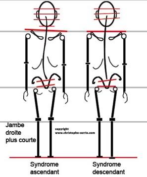 douleurs articulaires genoux carabiens le forum. Black Bedroom Furniture Sets. Home Design Ideas