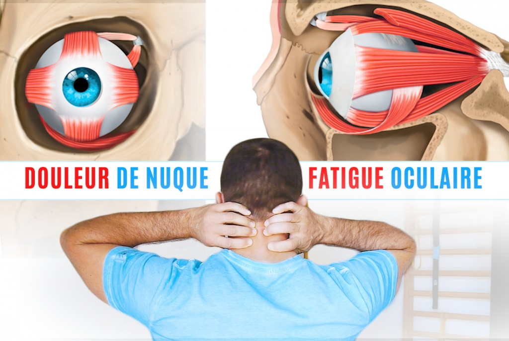 Douleur de nuque epaules et fatigue oculaire